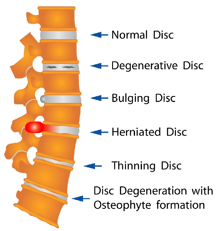 Best Office Chair for Degenerative Disc Disease