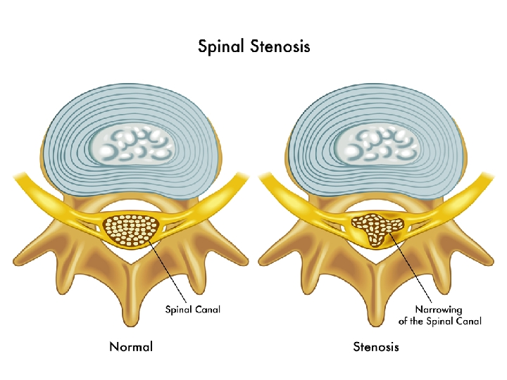 Best Recliner For Spinal Stenosis